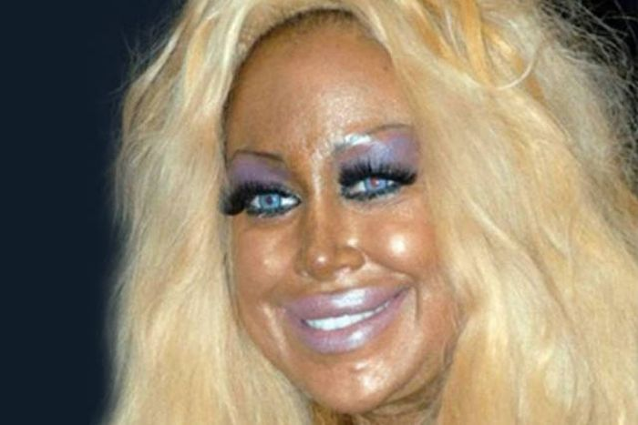 plastic_surgery_fails_02-1