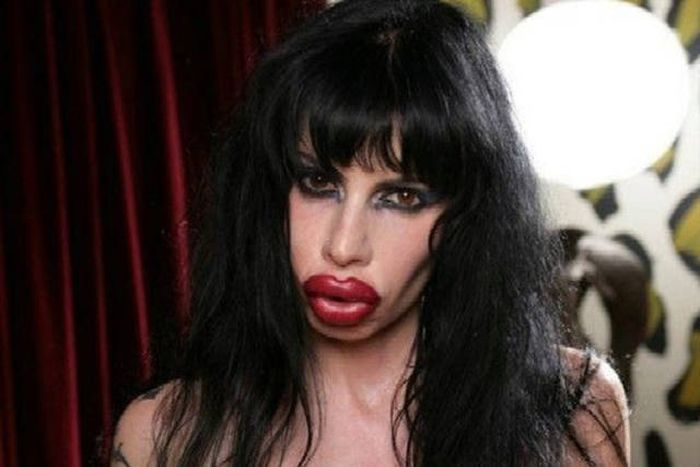 plastic_surgery_fails_03-1