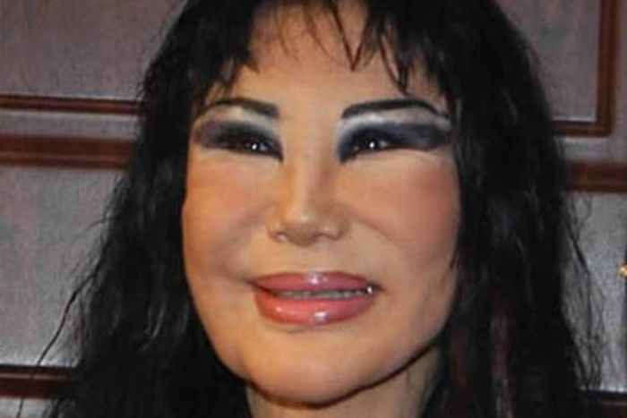 plastic_surgery_fails_04-1
