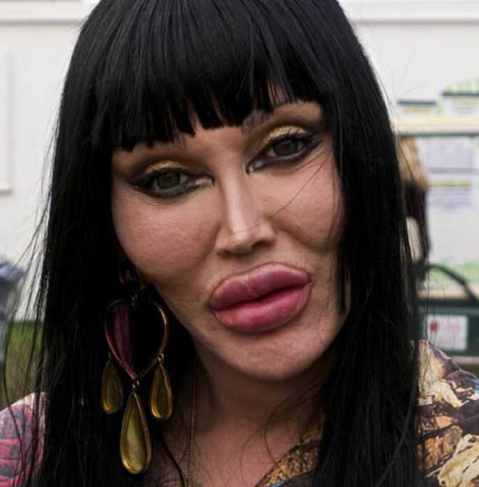 plastic_surgery_fails_07-1