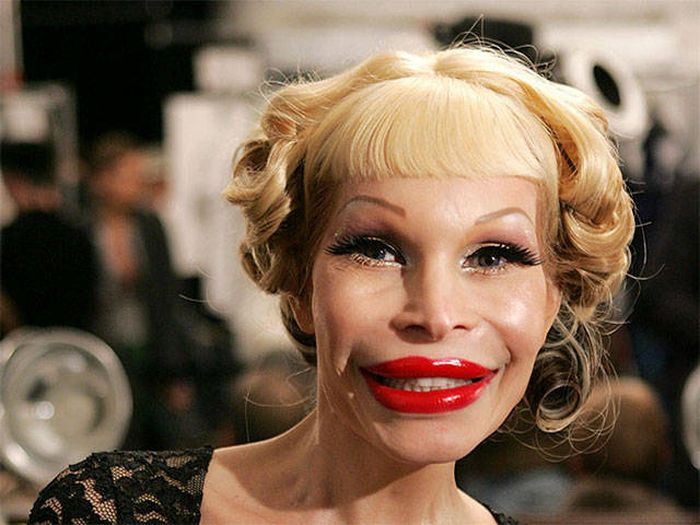 plastic_surgery_fails_08-1