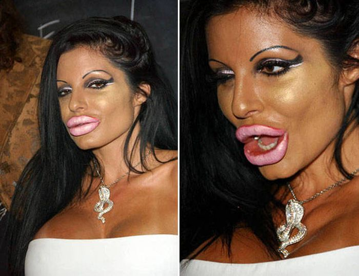 plastic_surgery_fails_10-1