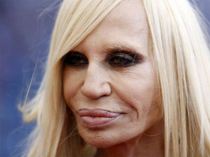 plastic_surgery_fails_12-1