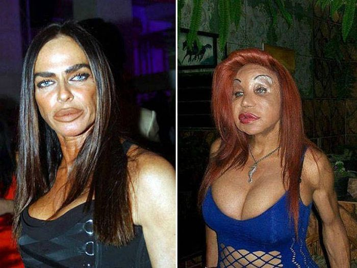 plastic_surgery_fails_13-1