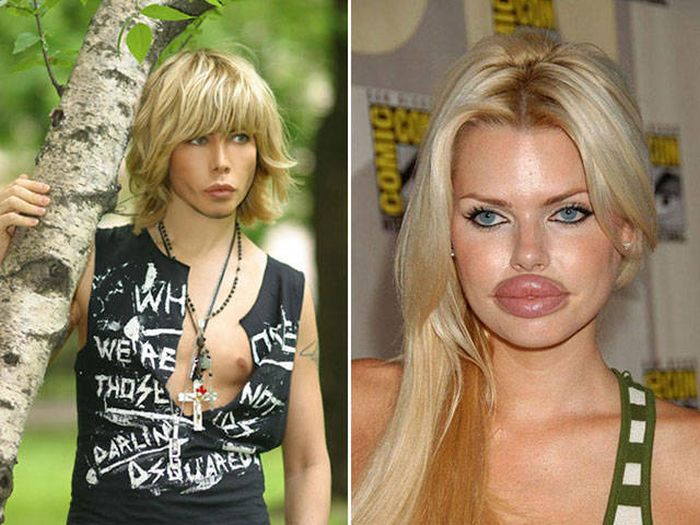 plastic_surgery_fails_16-1