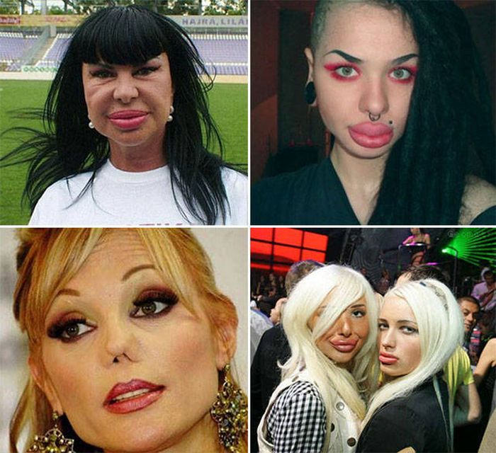 plastic_surgery_fails_19-1