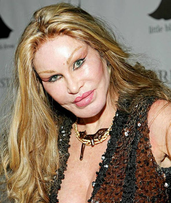 plastic_surgery_fails_20-1