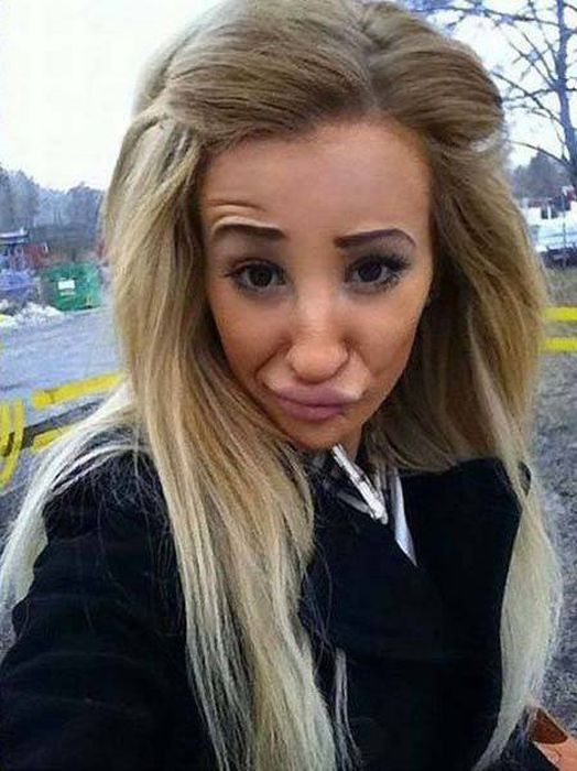 plastic_surgery_fails_22-1