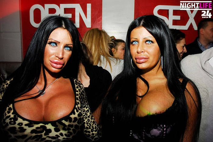 plastic_surgery_fails_23-1