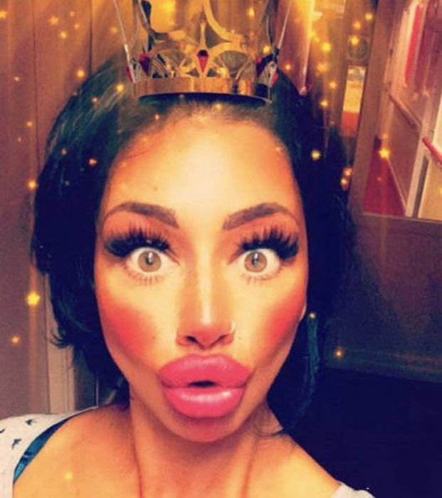 plastic_surgery_fails_35-1