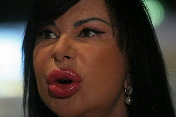 plastic_surgery_fails_37-1