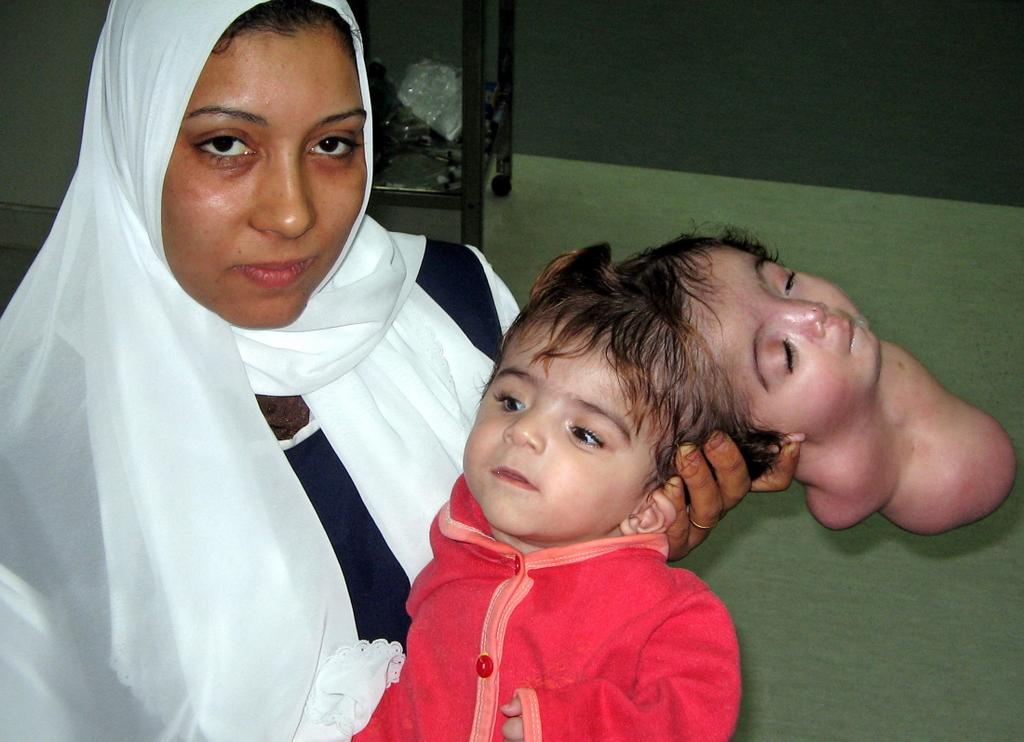 A nurse hold an Egyptian baby named Manar Maged in a hospital in the city of Banha, 40 km, 25 miles, north of Cairo February 18, 2005. Egyptian doctors said they removed a second head from a 10-month-old girl suffering from one of the rarest birth defects in an operation on Saturday.   Maged was in a serious but improving condition after the procedure to treat her for craniopagus parasiticus -- a problem related to that of conjoined twins linked at the skull.   As in the case of a girl who died after surgery in the Dominican Republic a year ago, the second twin had developed no body. The head that was removed from Manar had been capable of smiling and blinking but not independent life, doctors said.  Picture taken Feb. 18  REUTERS/Str