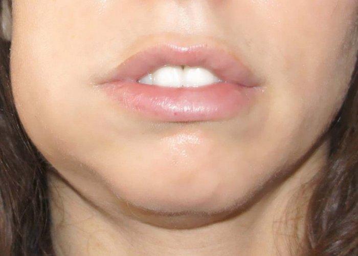 Опухла щека от зуба как снять опухоль в домашних условиях